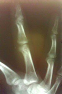 рентген сломанного пальца