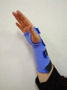 Пример фиксации руки после операции