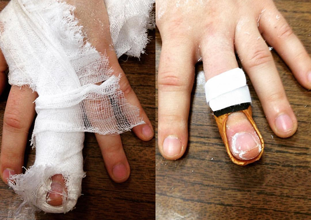 Что делать при разрыве сухожилия на пальце руки