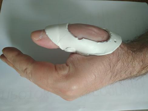Палец лыжника