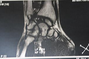 Некроз полулунной кости на МРТ