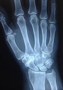 Артроз между трапецией, трапециевидной и ладьевидной костями - довольно редкая патология.