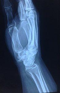Подобные рентгенологические изменения встречаются гораздо чаще, чем связанная с этой патологией боль.