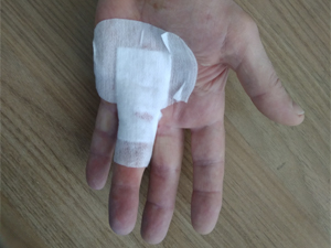Лечение контрактуры дюпюитрена