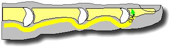 Повреждение сухожилий сгибателей пальцев кисти