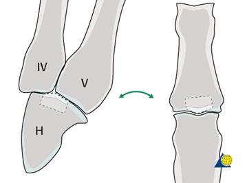 Лечение неправильно сросшегося перелома пальца