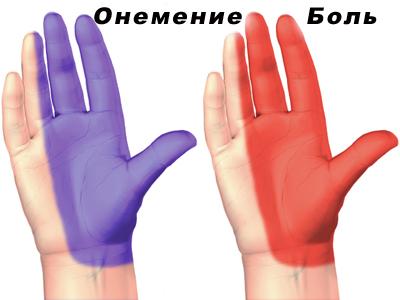 Локализация онемения или боли в руке при синдроме запястного канала