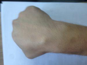 Гигрома опасно ли на руке