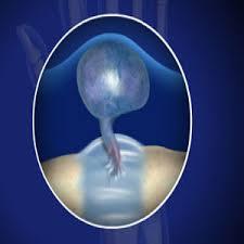 Гигрома запястья: причины и лечение